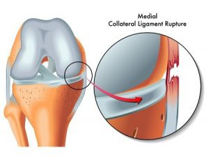 23117018 - medial collateral ligament rupture